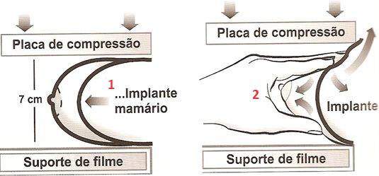 manobra protese